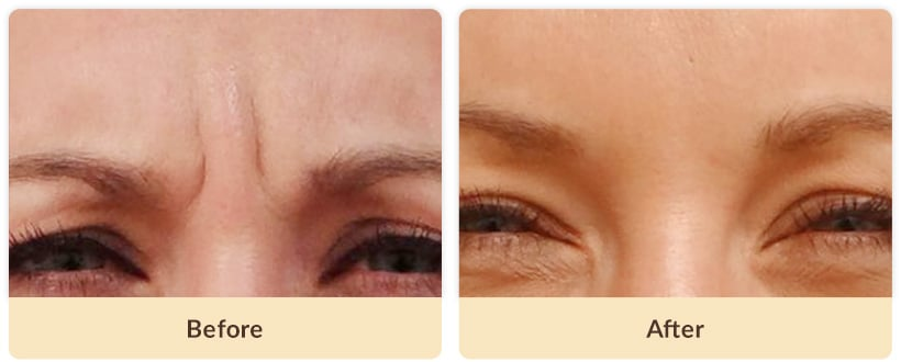 Frown Lines Botox Before And After