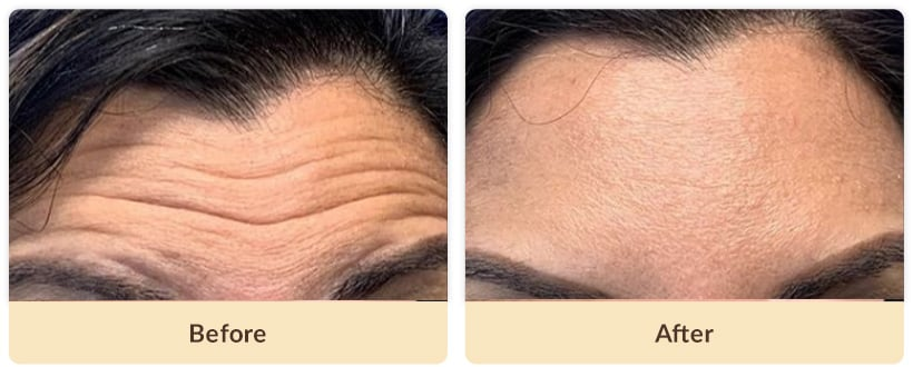 Botox forehead wrinkles before after