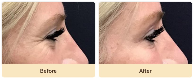 Botox Crows line before and after