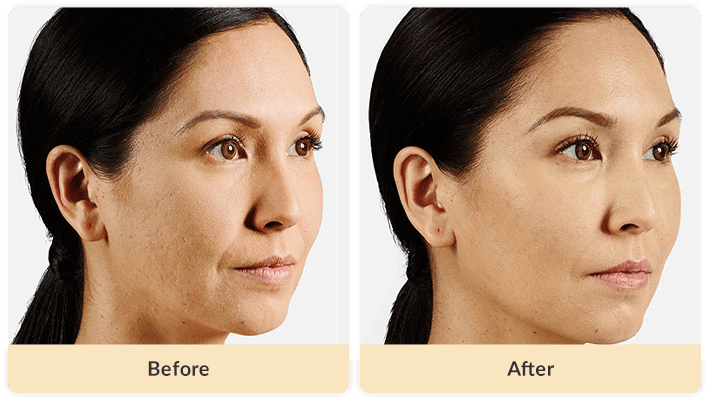 Cheekbone filler before and after