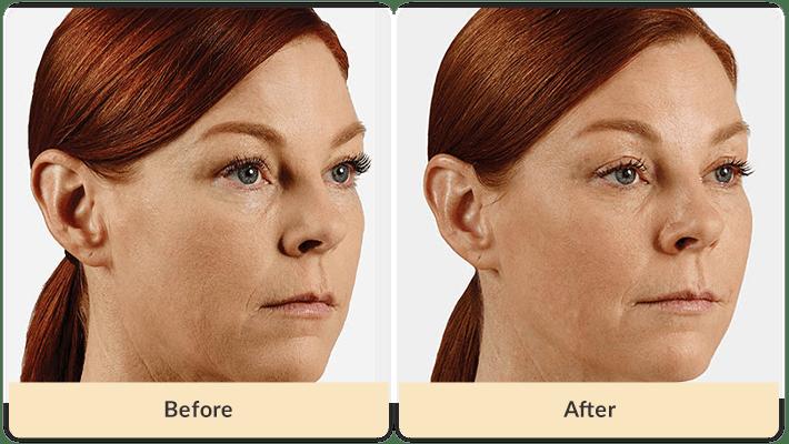 Juvederm Cheek Filler Before & After